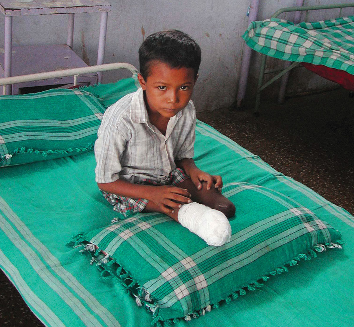 Vikas Prajapati from Vondhada village after an operation in Gandhidam, India.